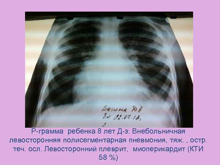 Двусторонняя полисегментарная пневмония причины, методы лечения и профилактика - о болезнях