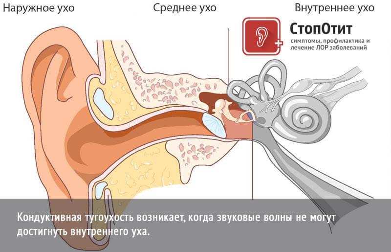 Тугоухость 2 степени - что это такое, лечение лекарствами у взрослых, нейросенсорная, сенсоневральная у ребенка, восстановится ли слух, как лечить