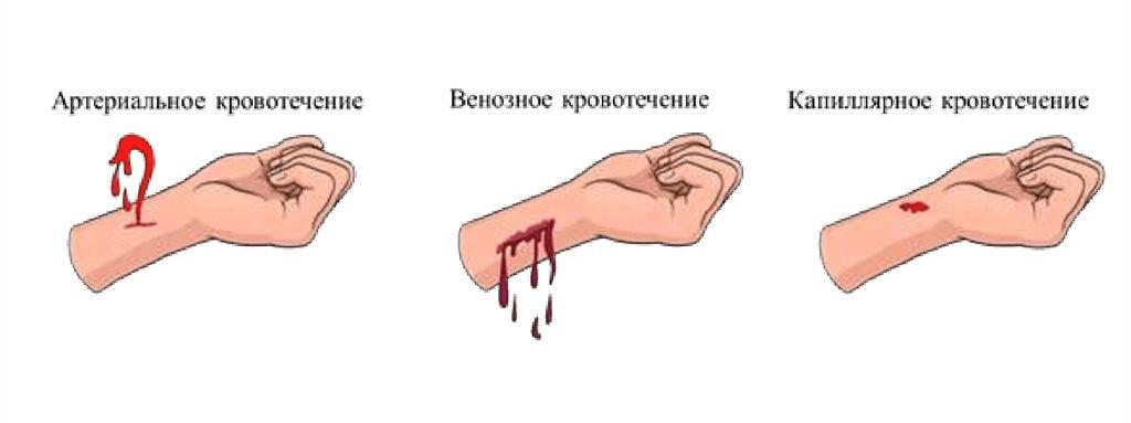 Внутриматочное кровотечение: первые признаки, симптомы, диагностика. как остановить кровь?