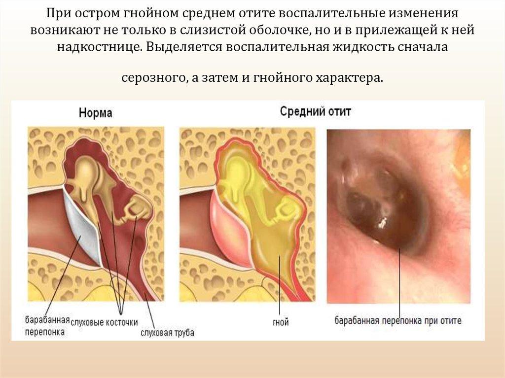 Отит у взрослых: симптомы и лечение, какие антибиотики принимать?