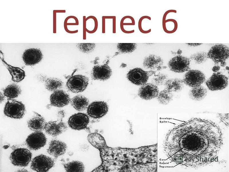 Герпес 6 типа у ребенка или взрослого - признаки, диагностика, лекарственная терапия и последствия