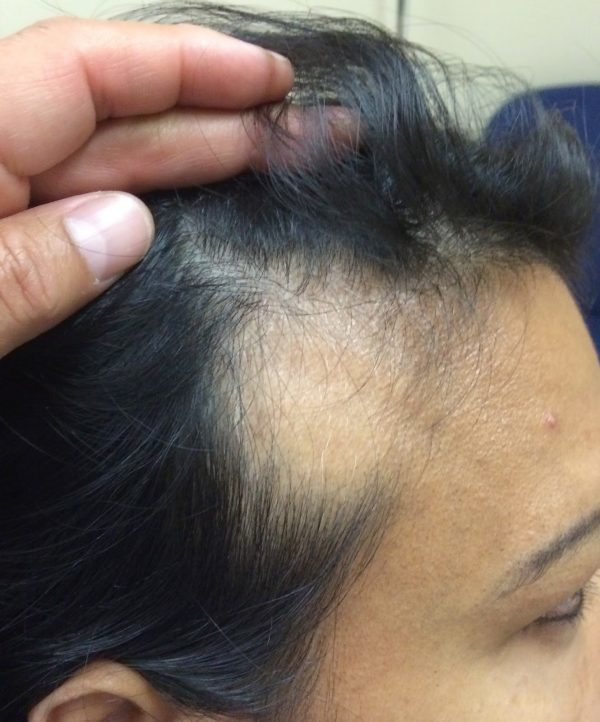 Алопеция - это что такое? виды, причины, и лечение выпадения волос - luv.ru