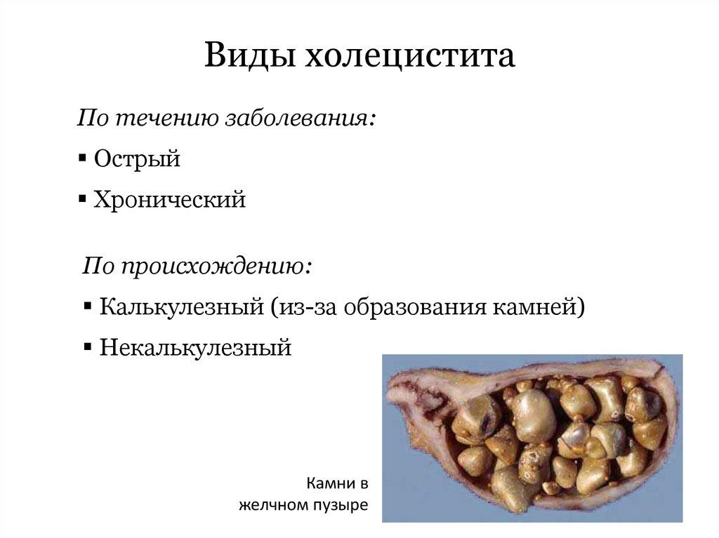 Бескаменный некалькулезный холецистит: что это такое, симптомы и лечение