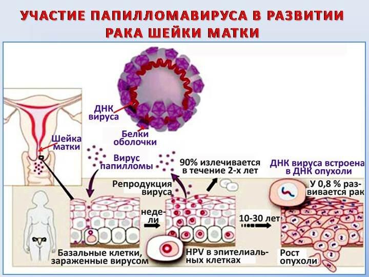 Вирус папилломы человека, что это? симптомы и лечение у женщин и мужчин