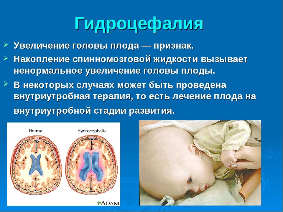 Гидроцефалия (водянка головного мозга) - симптомы, причины