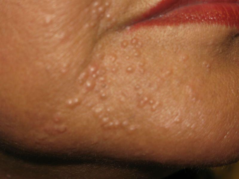 Клещ демодекс на лице