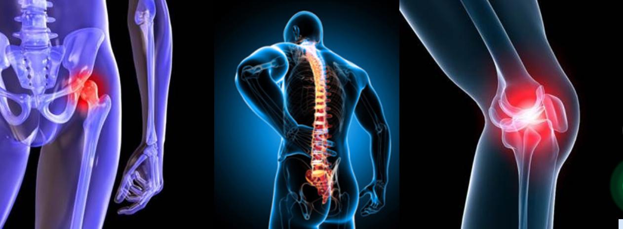 Что такое остеоартрит — причины, симптомы и принципы терапии