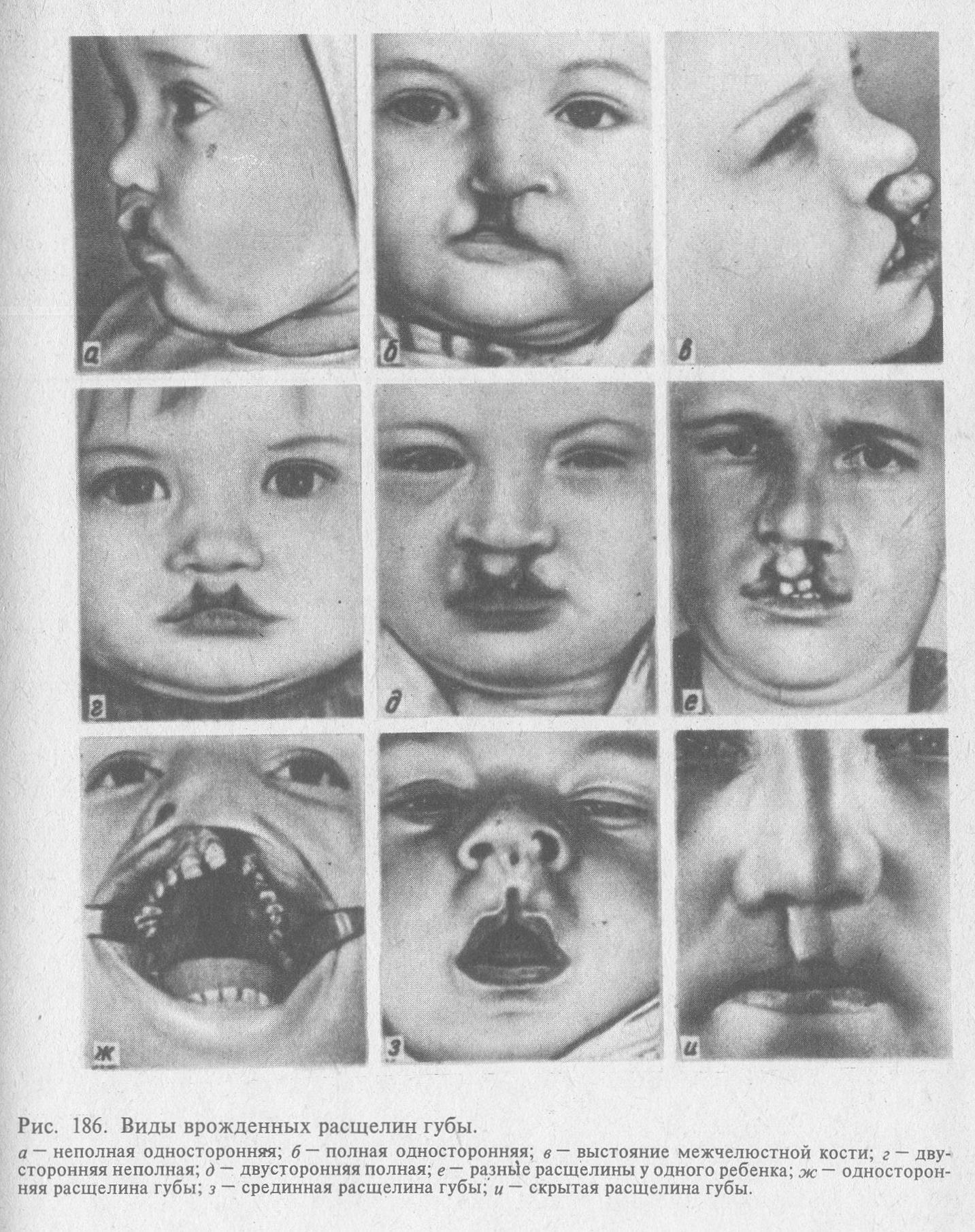 Почему возникает заячья губа, как устранить недуг