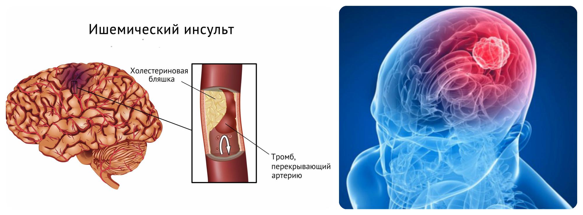 Симптомы и первые признаки ишемического инсульта головного мозга у мужчин и женщин + видео