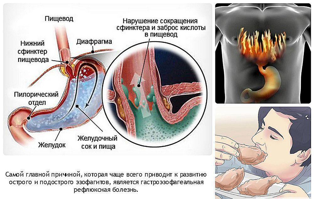 Гастроэзофагеальный рефлюкс: выпадение матки и стенок влагалища: причины, симптомы, диагностика и лечение