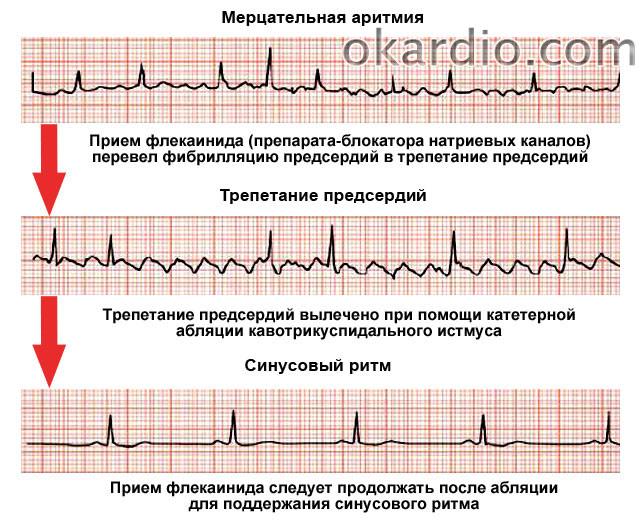 Как проявляется мерцательная аритмия | лечение сердца