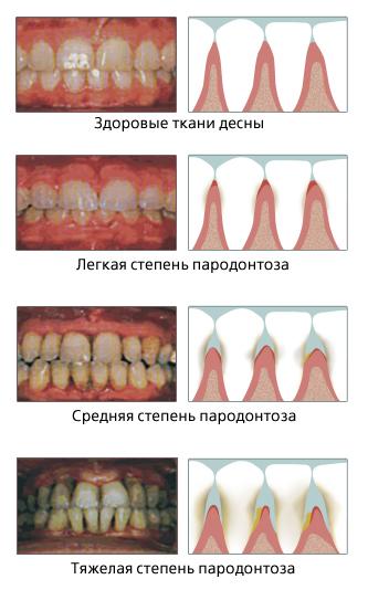 Как лечат пародонтоз в стоматологических клиниках? профилактика и симптомы пародонтоза