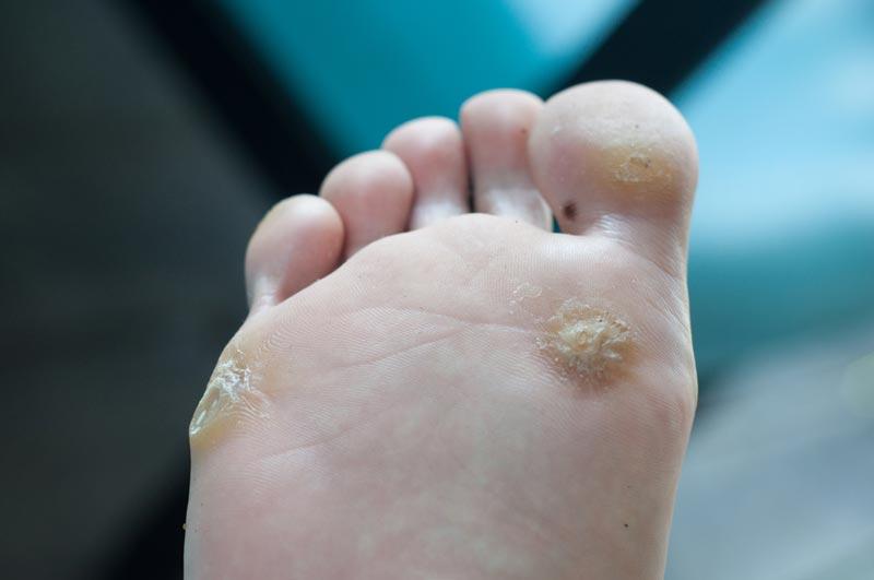 Что такое шипица, как она выглядит, места образования (на руке, ноге, пальце)