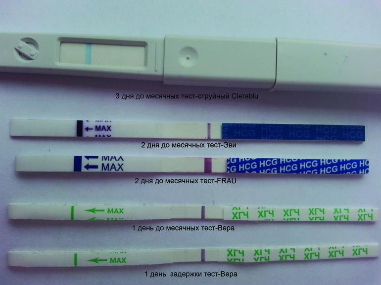 Почему может быть задержка месячных: возможные причины, кроме беременности