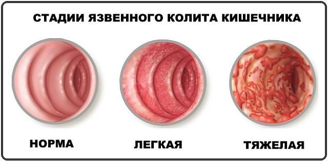 Колит кишечника: симптомы и лечение у взрослых, диета