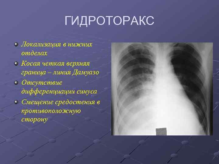 Что такое гидроторакс легких