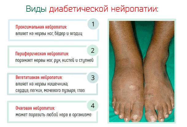 Алкогольная полинейропатия нижних конечностей:симптомы и лечение