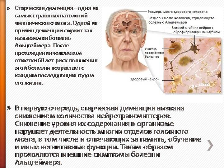 """Рубрика """"старческая деменция"""""""