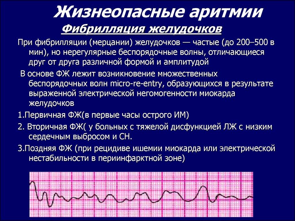 Как лечить мерцательную аритмию сердца в домашних условиях?