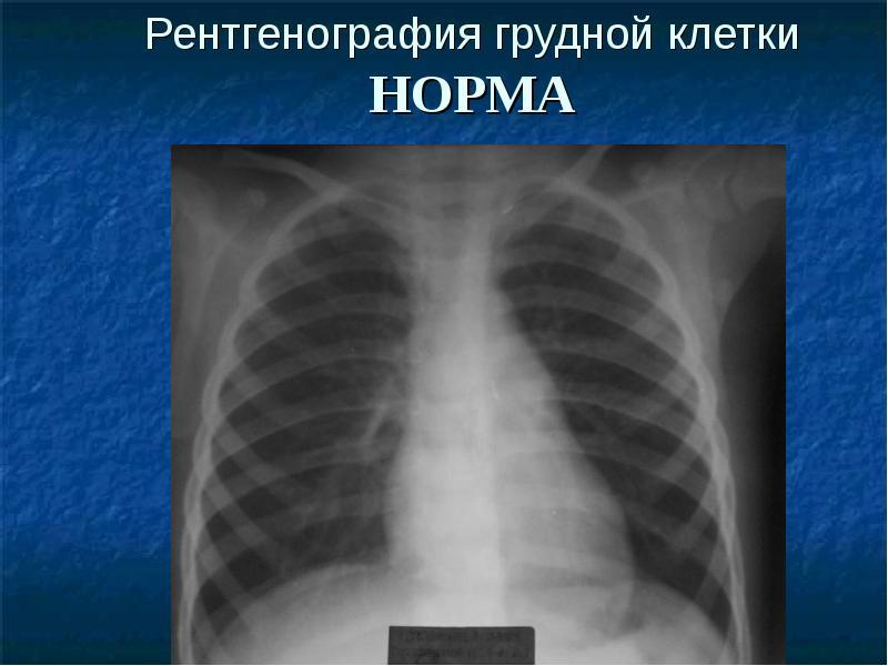 Флюорография и рентген легких: в чем разница, особенности и побочные эффекты