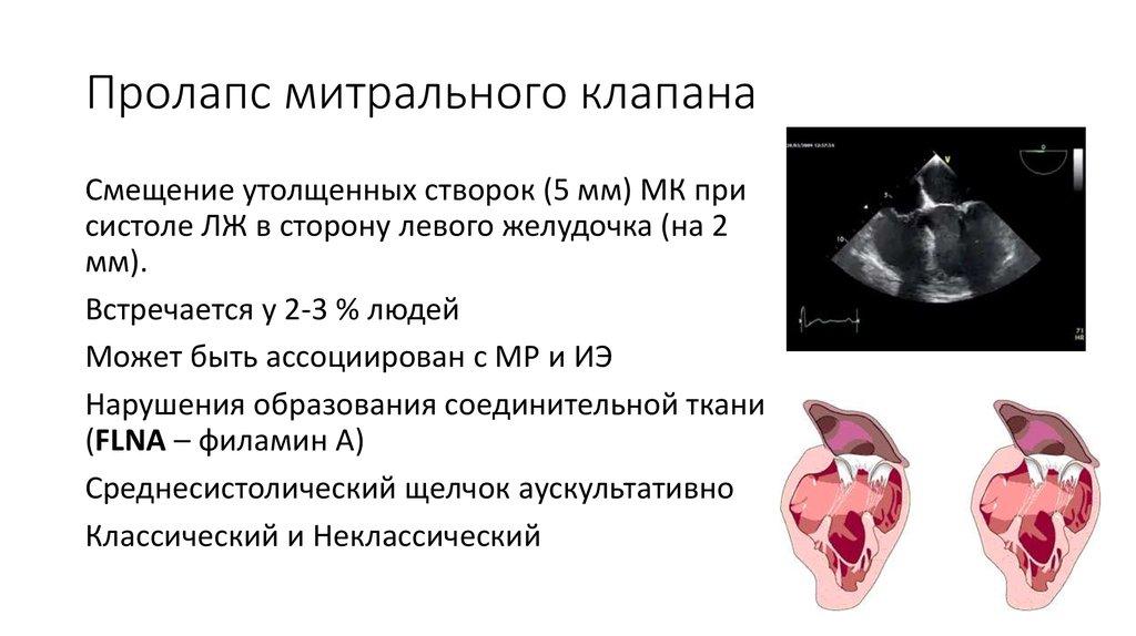 Диагноз пмк 1 степени что это - здоров.сердцем