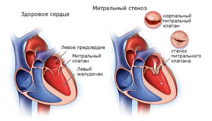 Порок сердца — классификация, виды патологий, диагностика