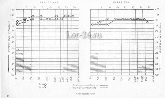 Тимпанометрия: показания, методика исследования