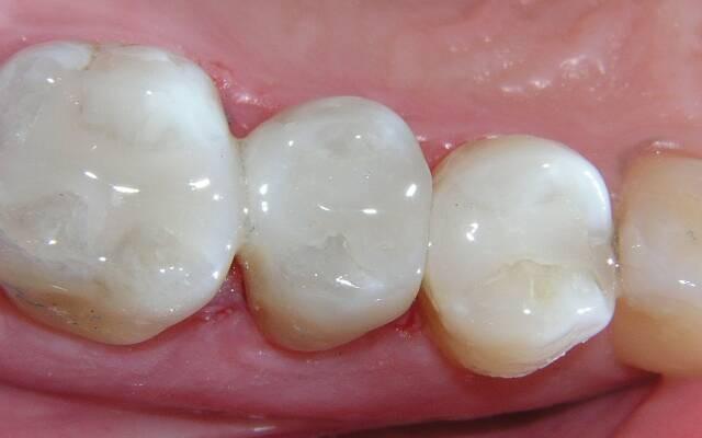 Пломбы для зубов: виды зубных пломб