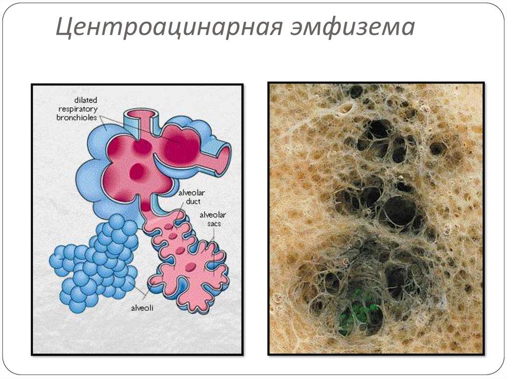 Как лечить эмфизему легких в домашних условиях