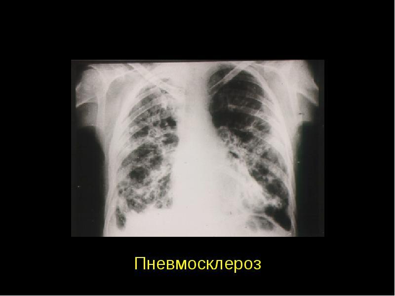 Пневмофиброз легких. лечение народными средствами