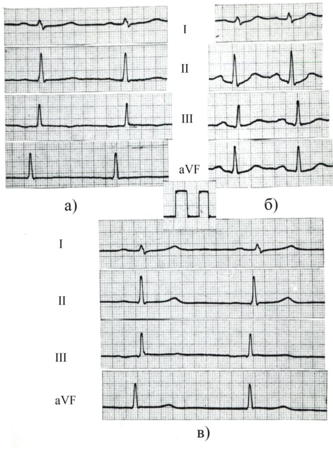 Нерегулярный синусовый ритм - медспециалист