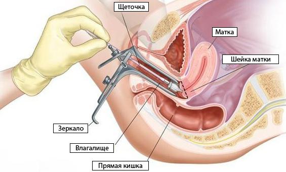 Мазок у гинеколога