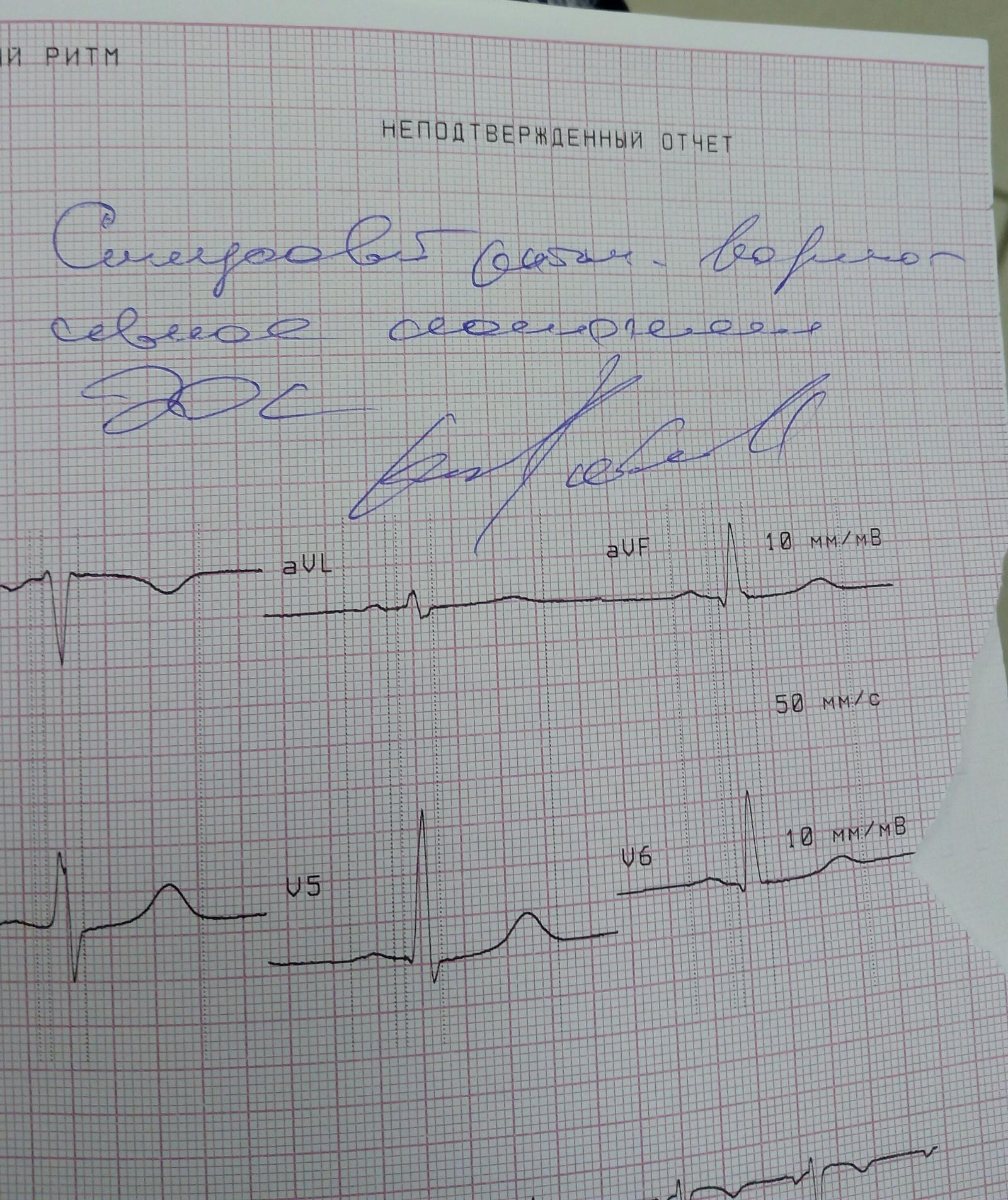✅ что такое синусовый ритм сердца на экг - денталюкс.su