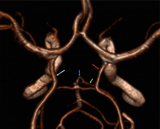 Гипоплазия артерии – проявления и лечение