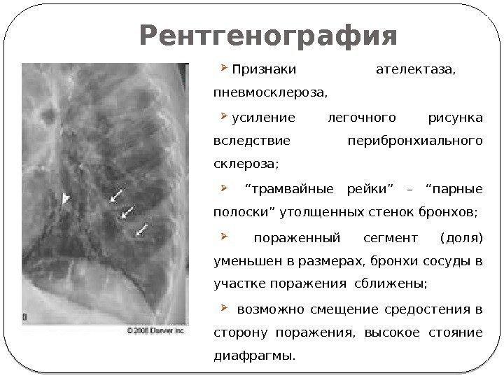 Как лечить пневмофиброз легких