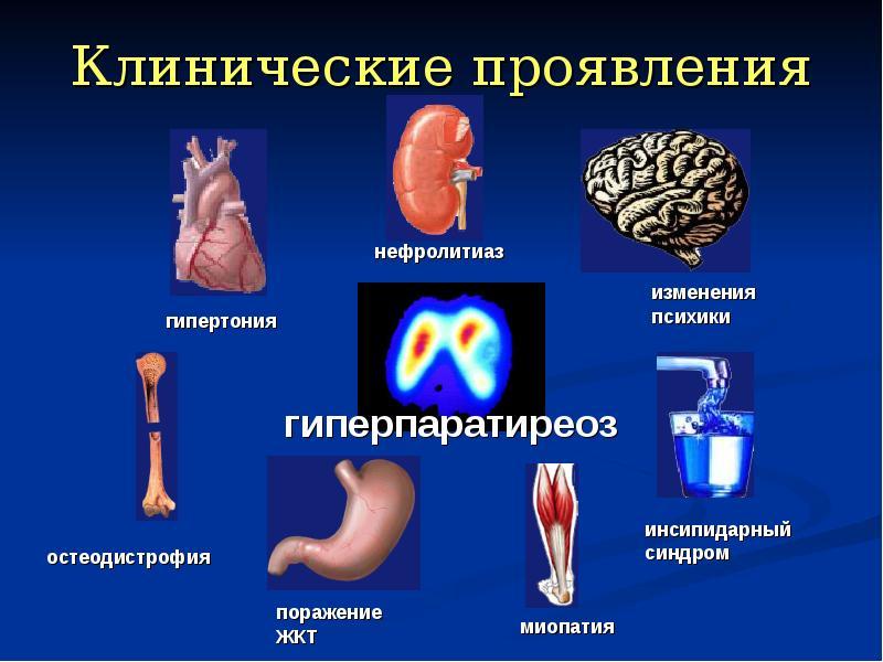Что такое первичный гиперпаратиреоз