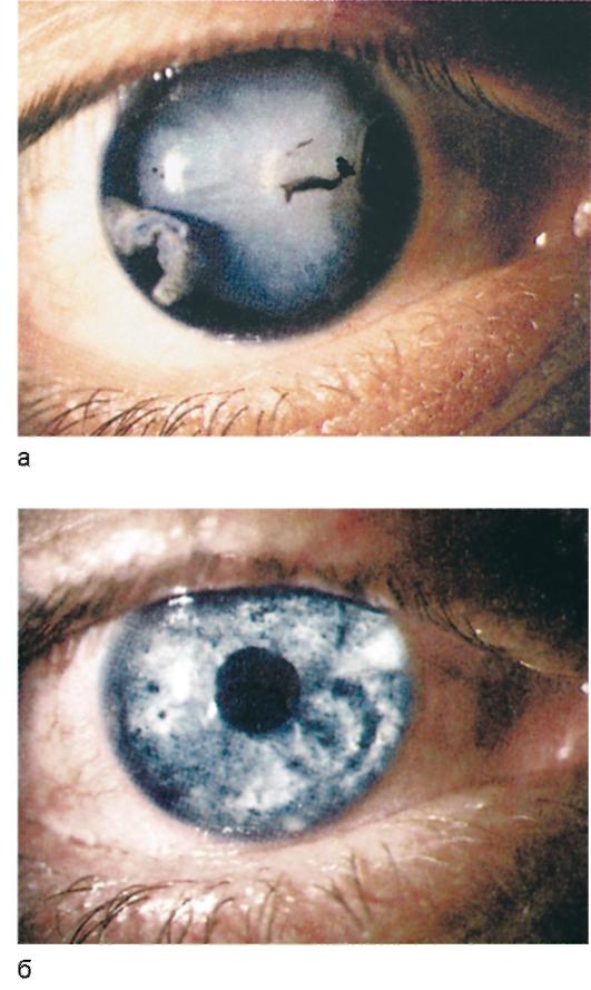 Радужка глаза (радужная оболочка) и иридодиагностика