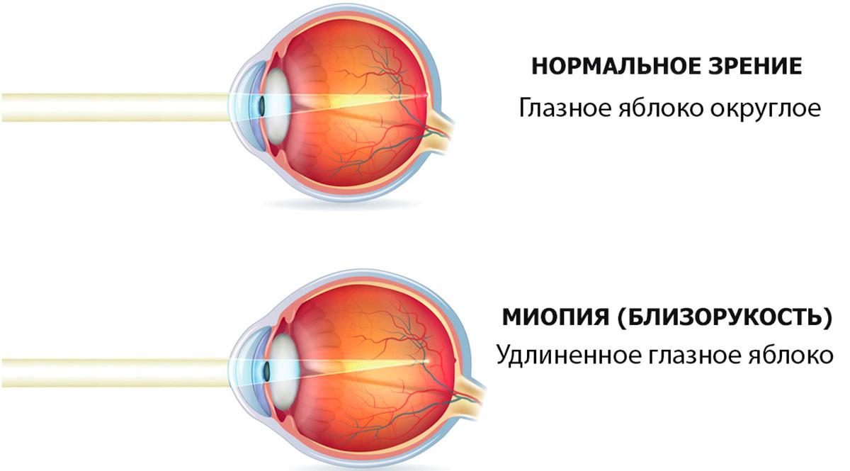Миопия – что это такое? миопия глаза слабой, средней, высокой степени – как улучшить зрение при близорукости?