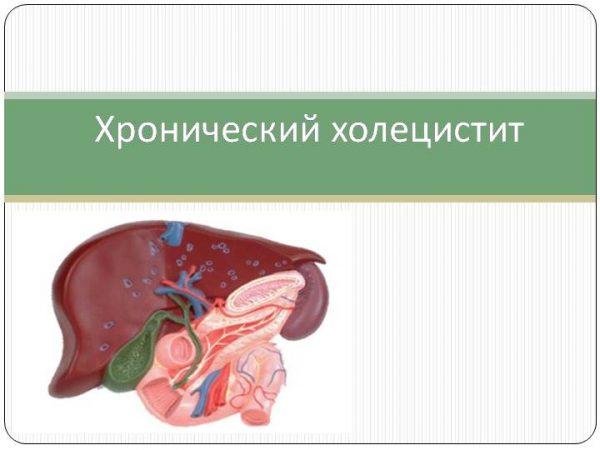 Холецистит: симптомы и лечение у взрослых женщин и мужчин, что это за болезнь, признаки