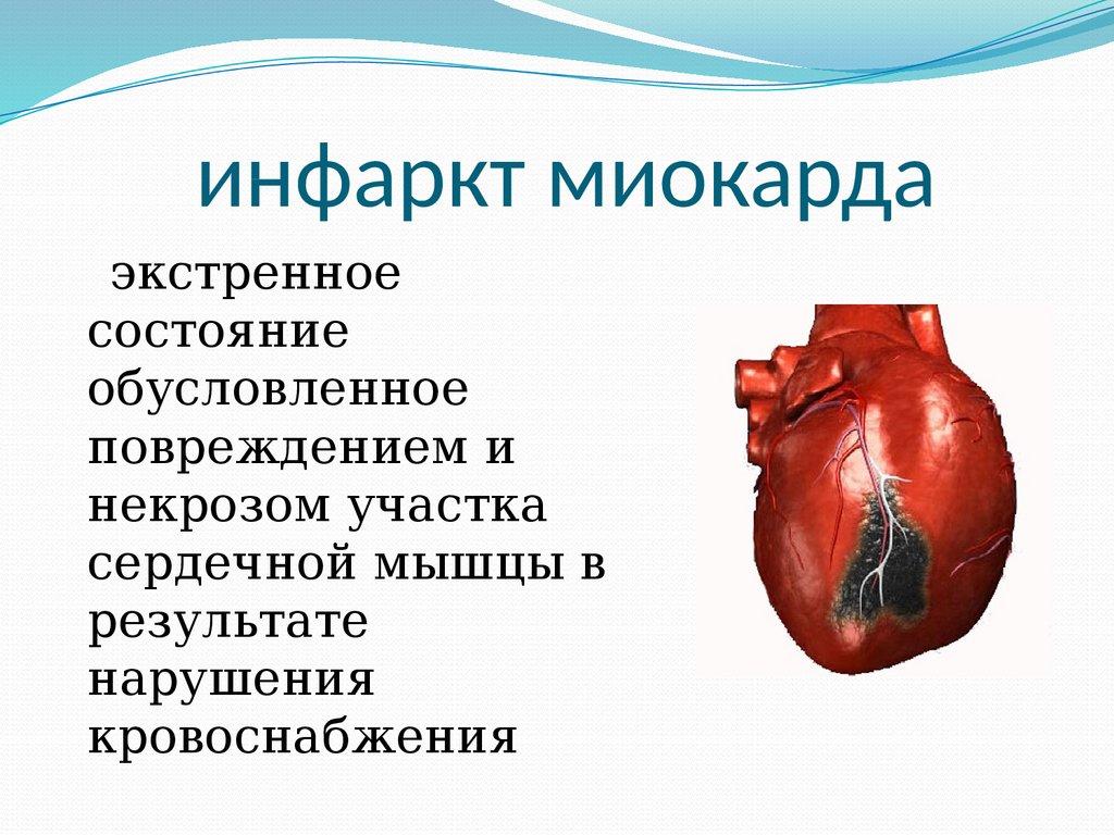 Инфаркт миокарда - признаки, симптомы, причины, диагностика и способы лечения заболевания
