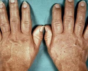 Акромегалия – что это такое, причины, симптомы и лечение