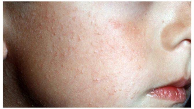 На коже появились пупырышки и чешутся - что это за прыщи, причины (+фото)