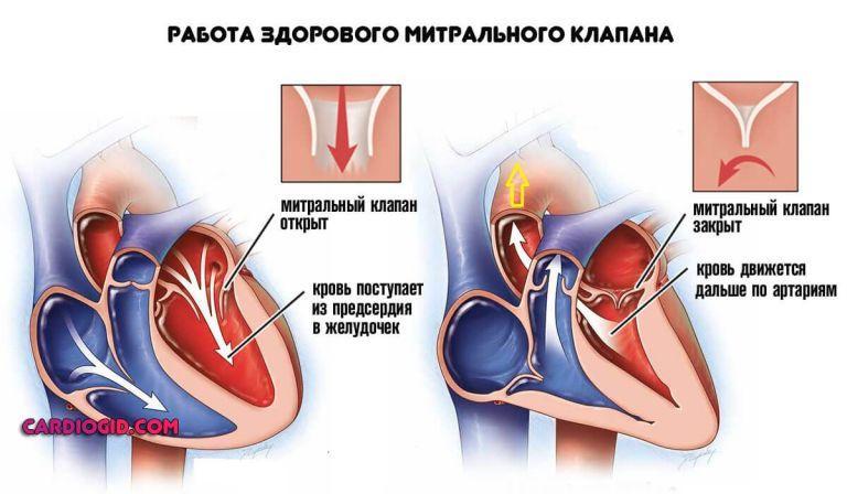 Регургитация на митральном клапане 1 степени — сердце