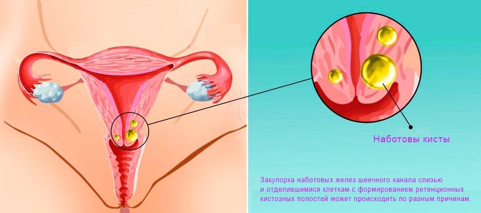 Киста эндоцервикса на шейке матки, причины, симптомы и лечение
