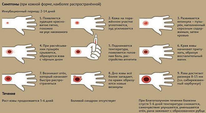 Сибирская язва: все от возбудителя и симптомов заболевания до профилактики