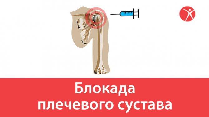 Блокада при остеохондрозе: показания к методу лечения