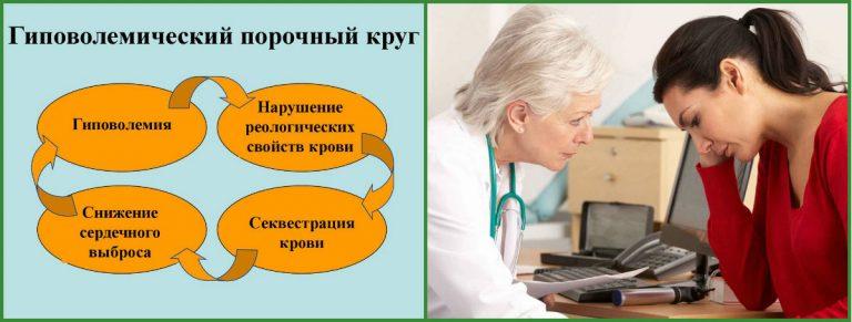 Гиповолемия - лечение, симптомы, причины гиповолемии