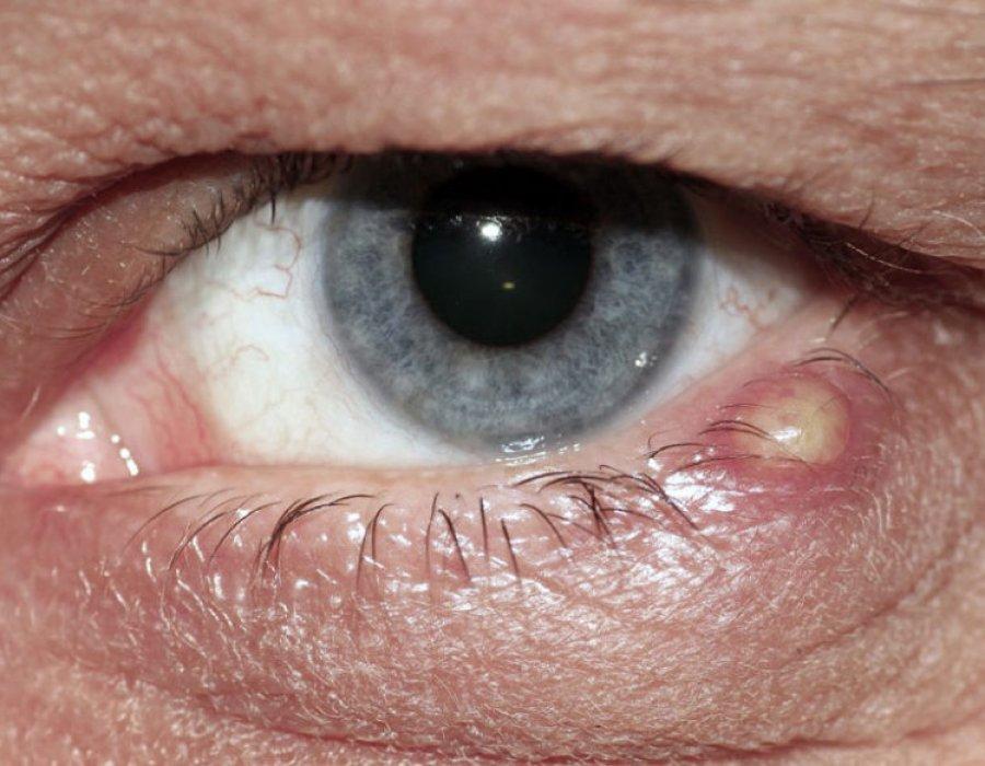 Халязион на глазу: что это такое и как его лечить