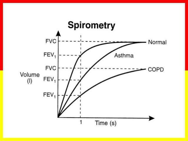 Спирометрия - что это такое? расшифровка нормальных показателей