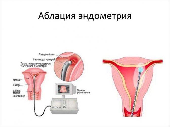 Полипы эндометрия в матке: симптомы и лечение (народные методы и препараты)